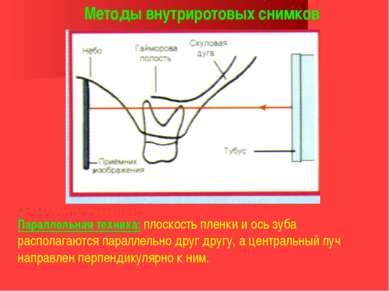 Методы внутриротовых снимков Параллельная техника: плоскость пленки и ось зуб...