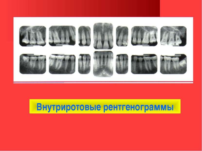 Внутриротовые рентгенограммы