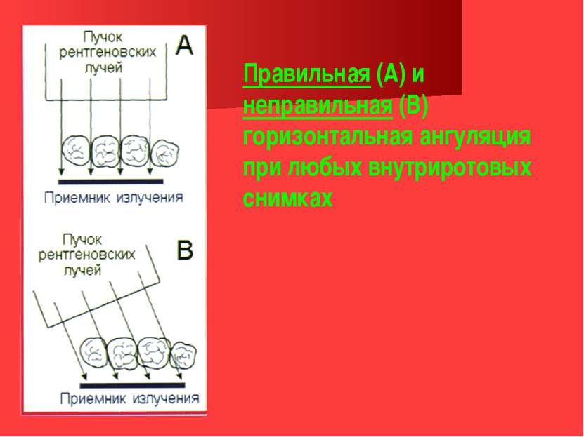 Правильная (А) и неправильная (В) горизонтальная ангуляция при любых внутриро...