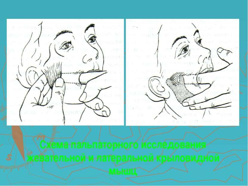Схема пальпаторного исследования жевательной и латеральной крыловидной мышц