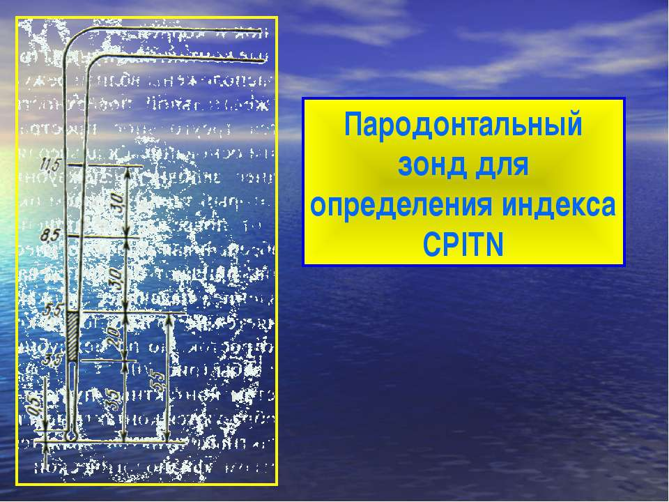 Пародонтальный зонд для определения индекса CPITN