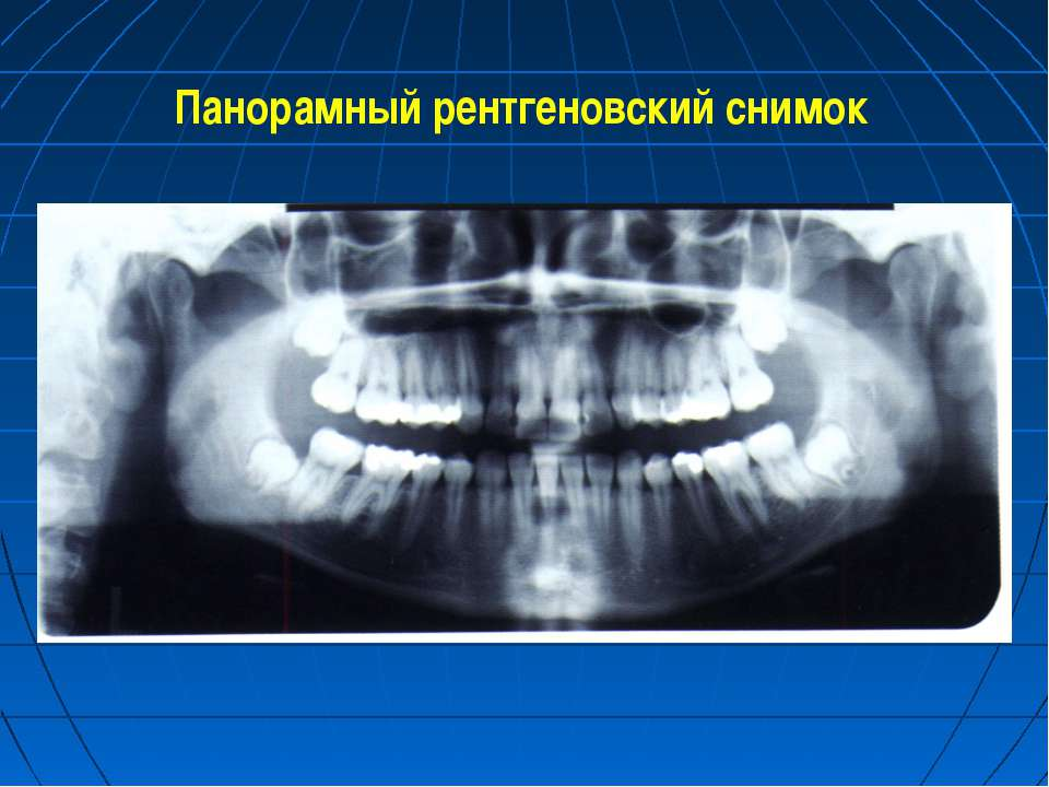 Панорамный рентгеновский снимок