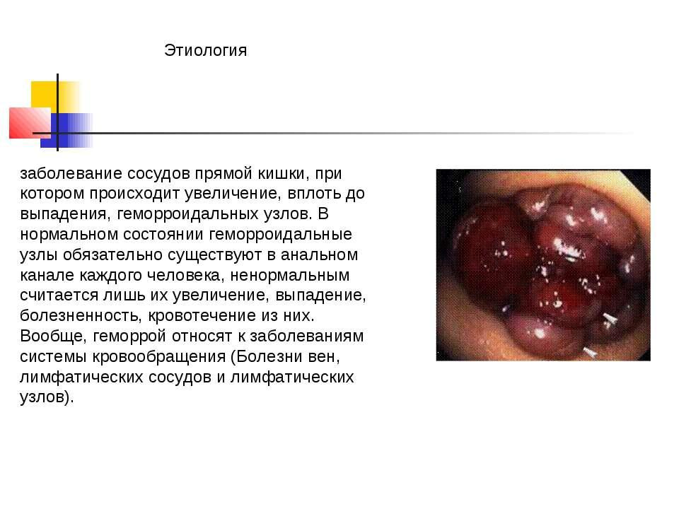 Этиология заболевание сосудов прямой кишки, при котором происходит увеличение...