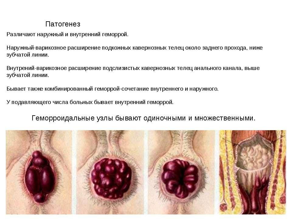 Патогенез Различают наружный и внутренний геморрой. Наружный-варикозное расши...