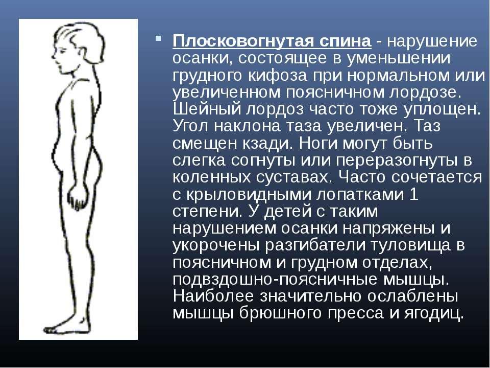 Плосковогнутая спина- нарушение осанки, состоящее в уменьшении грудного кифо...