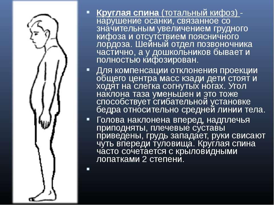 Круглая спина(тотальный кифоз) - нарушение осанки, связанное со значительным...