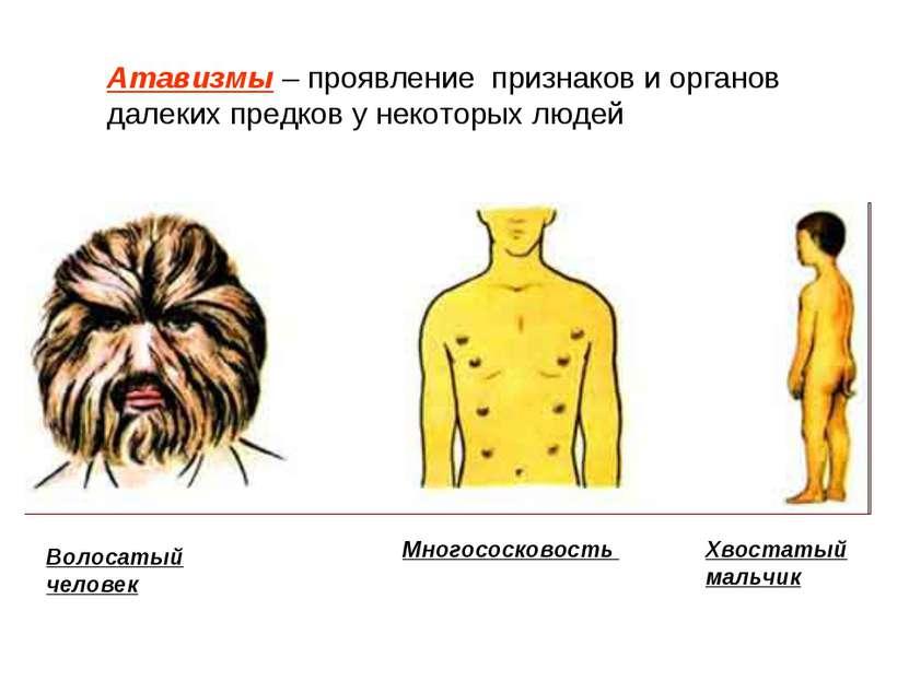 Атавизмы – проявление признаков и органов далеких предков у некоторых людей В...