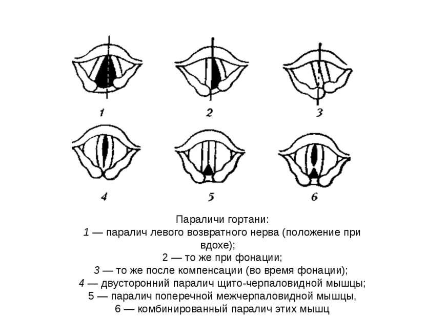 Параличи гортани: 1 — паралич левого возвратного нерва (положение при вдохе);...