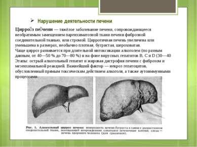 Нарушение деятельности печени Цирро з пе чени — тяжёлое заболевание печени, с...