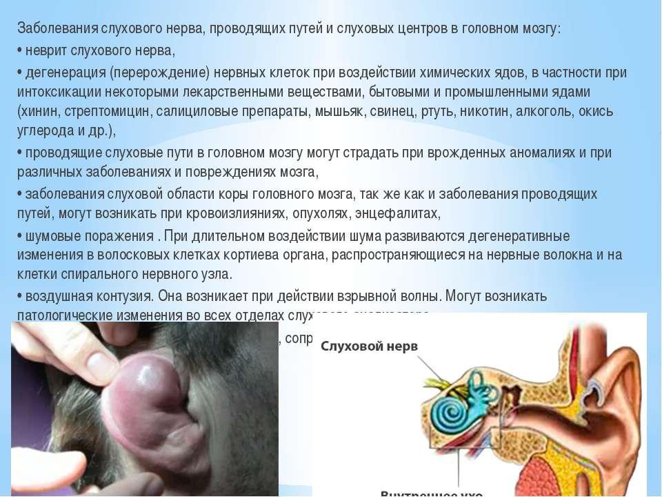 Заболевания слухового нерва, проводящих путей и слуховых центров в головном м...