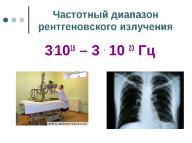 Частотный диапазон рентгеновского излучения 3.1016 – 3 . 10 20 Гц