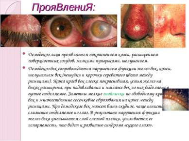 ПрояВлениЯ: Демодекоз лица проявляется покраснением кожи, расширением поверхн...
