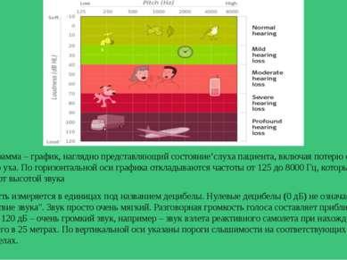 Аудиограмма – график, наглядно представляющий состояние'слуха пациента, включ...