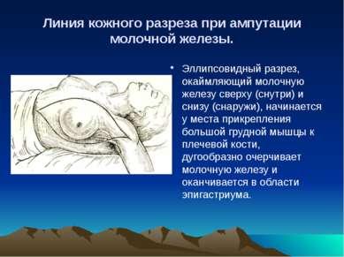 Линия кожного разреза при ампутации молочной железы. Эллипсовидный разрез, ок...