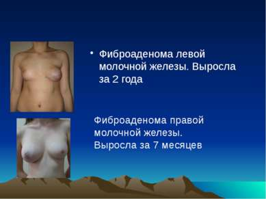 Фиброаденома левой молочной железы. Выросла за 2 года Фиброаденома правой мол...