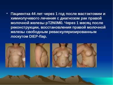 Пациентка 44 летчерез 1 год послемастэктомии и химиолучевого лечения с диаг...