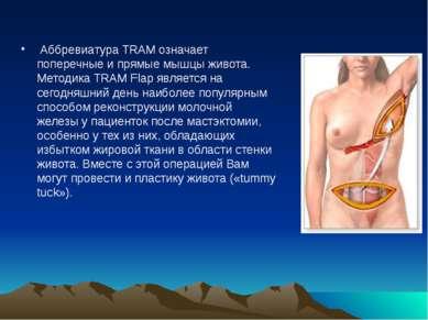 Аббревиатура TRAM означает поперечные и прямые мышцы живота. Методика TRAM F...