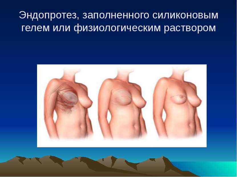 Эндопротез, заполненного силиконовым гелем или физиологическим раствором