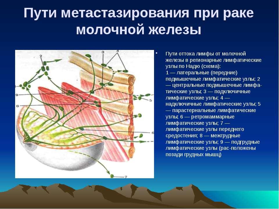 Пути метастазирования при раке молочной железы Пути оттока лимфы от молочной ...
