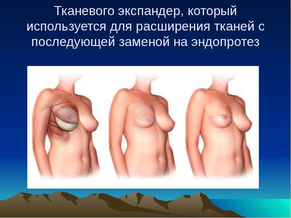 Тканевого экспандер, который используется для расширения тканей с последующей...