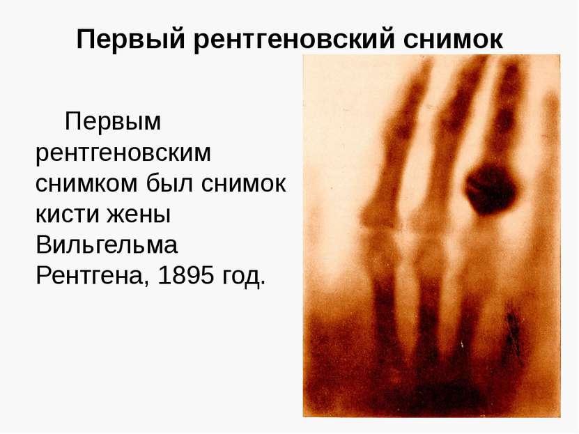 Первый рентгеновский снимок Первым рентгеновским снимком был снимок кисти жен...