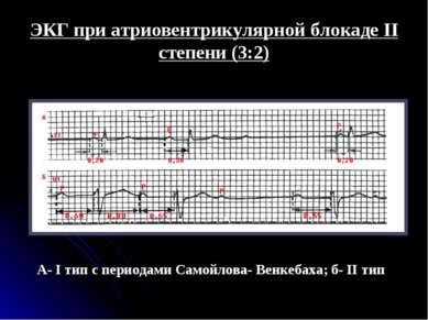 ЭКГ при атриовентрикулярной блокаде II степени (3:2) А- I тип с периодами Сам...