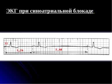ЭКГ при синоатриальной блокаде