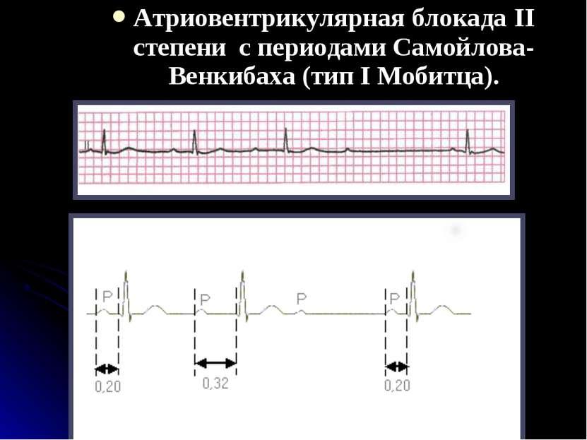 Атриовентрикулярная блокада II степени с периодами Самойлова-Венкибаха (тип I...
