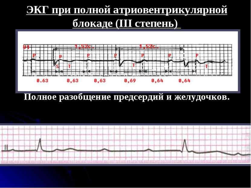 ЭКГ при полной атриовентрикулярной блокаде (III степень) Полное разобщение пр...