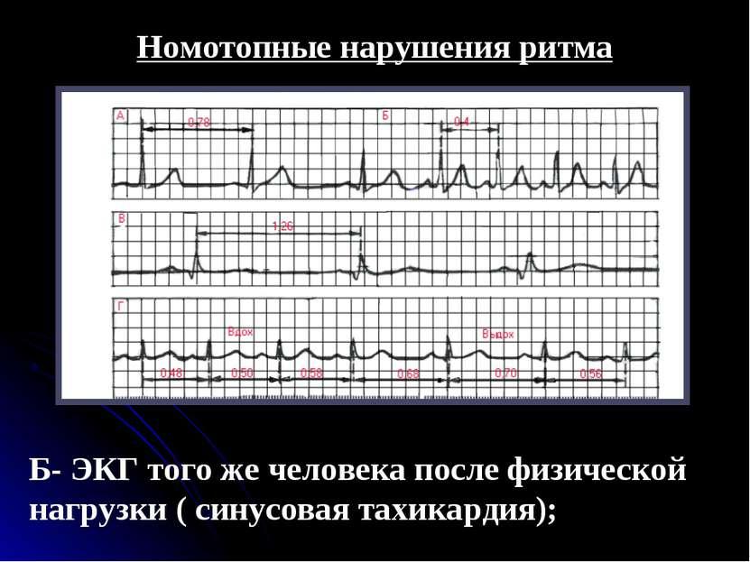 Номотопные нарушения ритма Б- ЭКГ того же человека после физической нагрузки ...