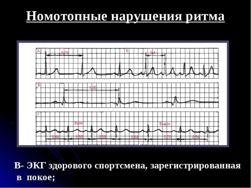 Номотопные нарушения ритма В- ЭКГ здорового спортсмена, зарегистрированная в ...