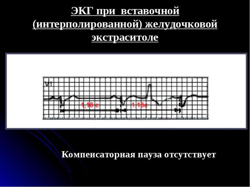 ЭКГ при вставочной (интерполированной) желудочковой экстраситоле Компенсаторн...