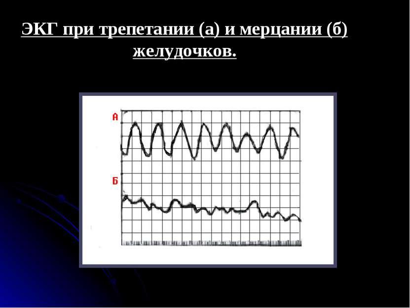 ЭКГ при трепетании (а) и мерцании (б) желудочков.