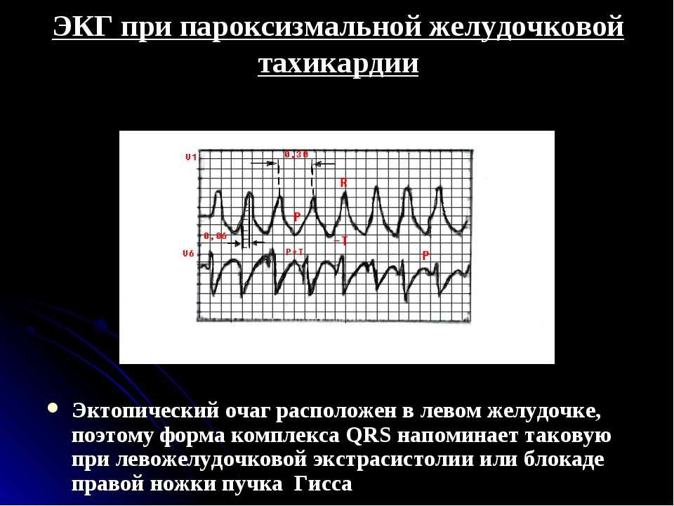 ЭКГ при пароксизмальной желудочковой тахикардии Эктопический очаг расположен ...