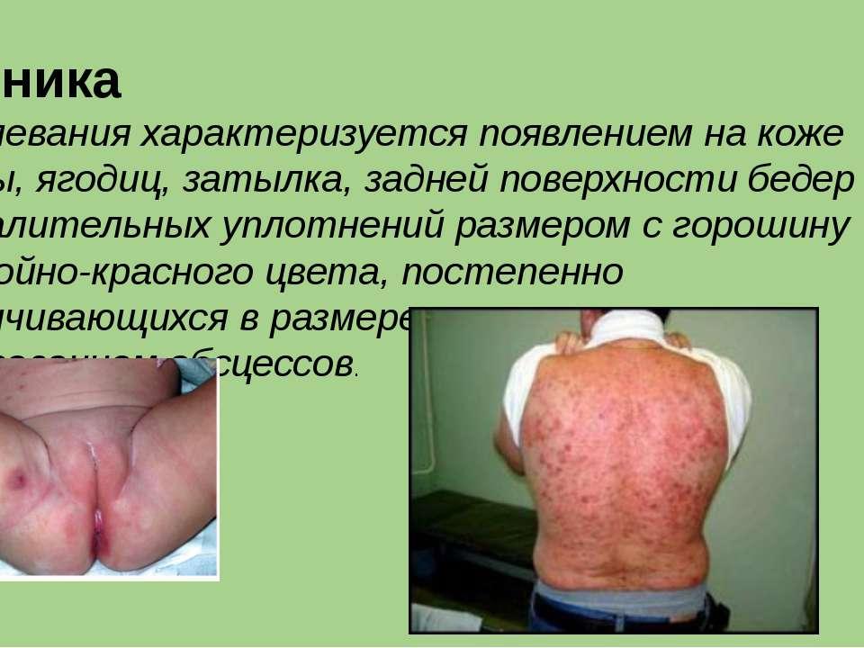 Клиника заболевания характеризуется появлением на коже спины, ягодиц, затылк...