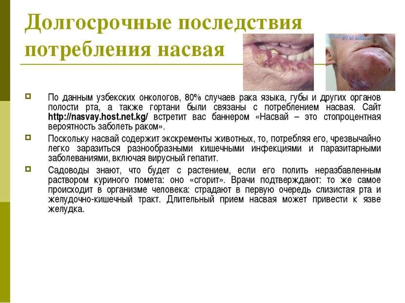 Долгосрочные последствия потребления насвая По данным узбекских онкологов, 80...