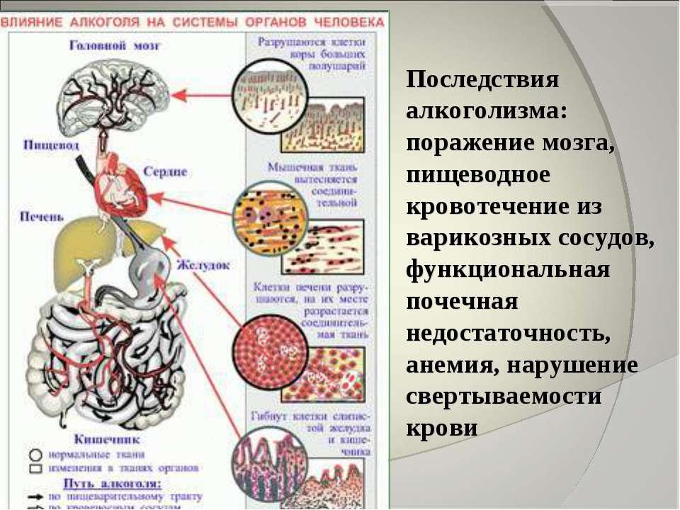 Последствия алкоголизма: поражение мозга, пищеводное кровотечение из варикозн...