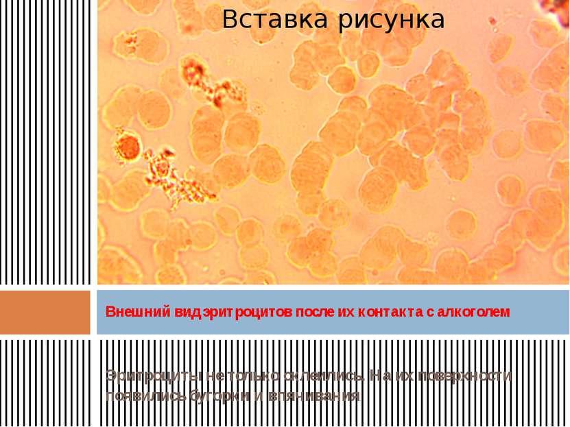 Эритроциты не только склеились. На их поверхности появились бугорки и впячива...