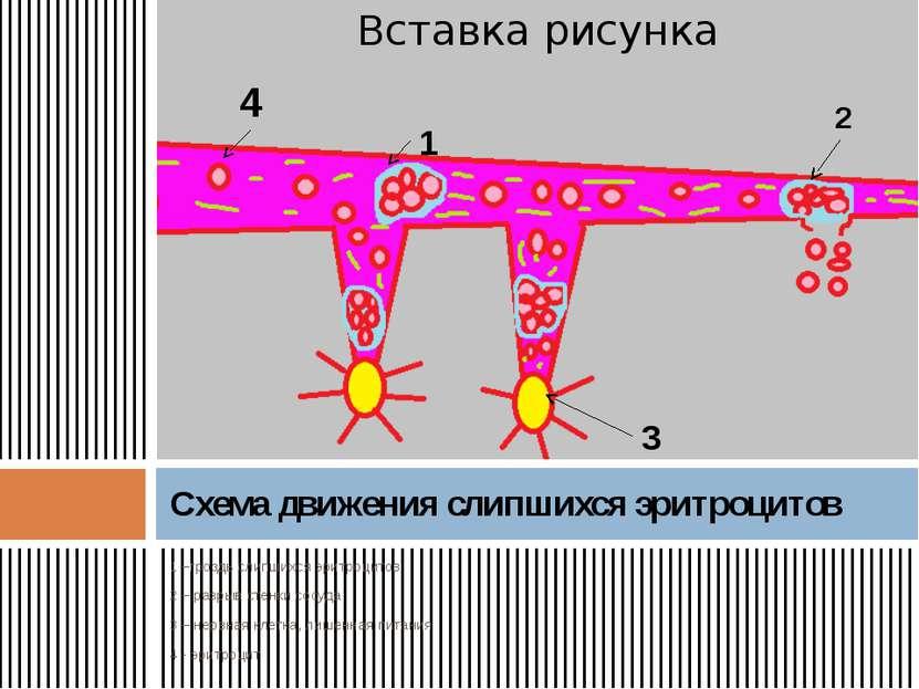 1 –гроздь слипшихся эритроцитов 2 – разрыв стенки сосуда 3 – нервная клетка, ...