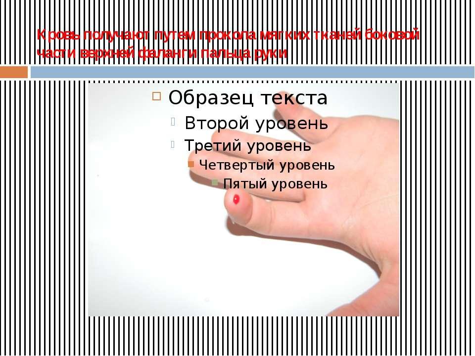 Кровь получают путем прокола мягких тканей боковой части верхней фаланги паль...