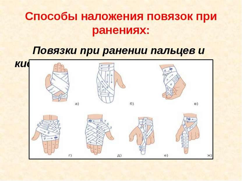 Способы наложения повязок при ранениях: Повязки при ранении пальцев и кисти