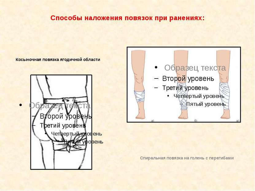 Способы наложения повязок при ранениях: Косыночная повязка ягодичной области ...