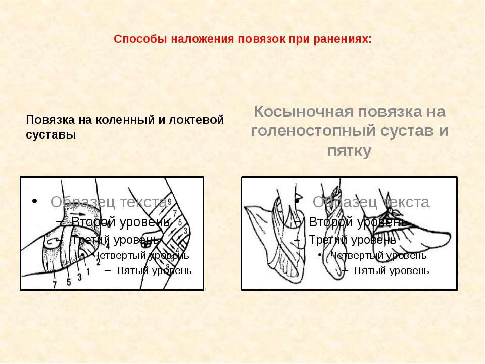 Способы наложения повязок при ранениях: Повязка на коленный и локтевой сустав...