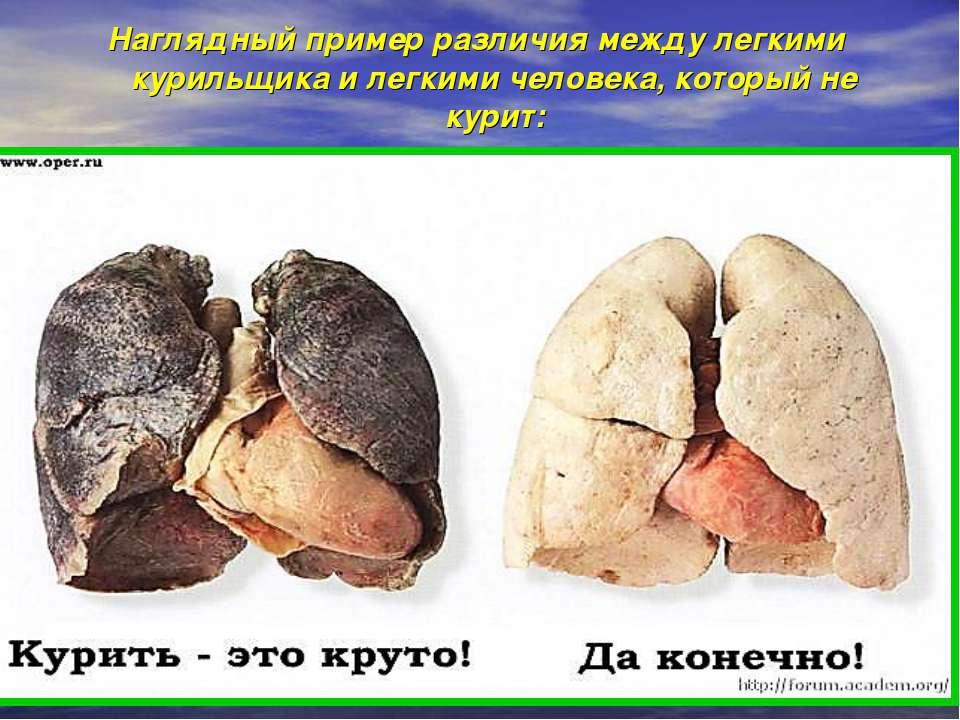 Наглядный пример различия между легкими курильщика и легкими человека, которы...