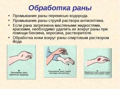 Обработка раны Промывание раны перекисью водорода. Промывание раны струей рас...