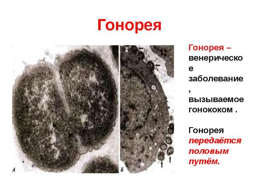 Гонорея Гонорея – венерическое заболевание, вызываемое гонококом . Гонорея пе...