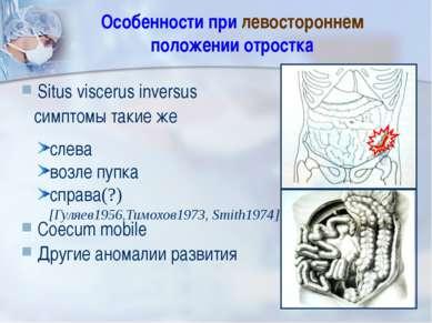 Особенности при левостороннем положении отростка Situs viscerus inversus симп...
