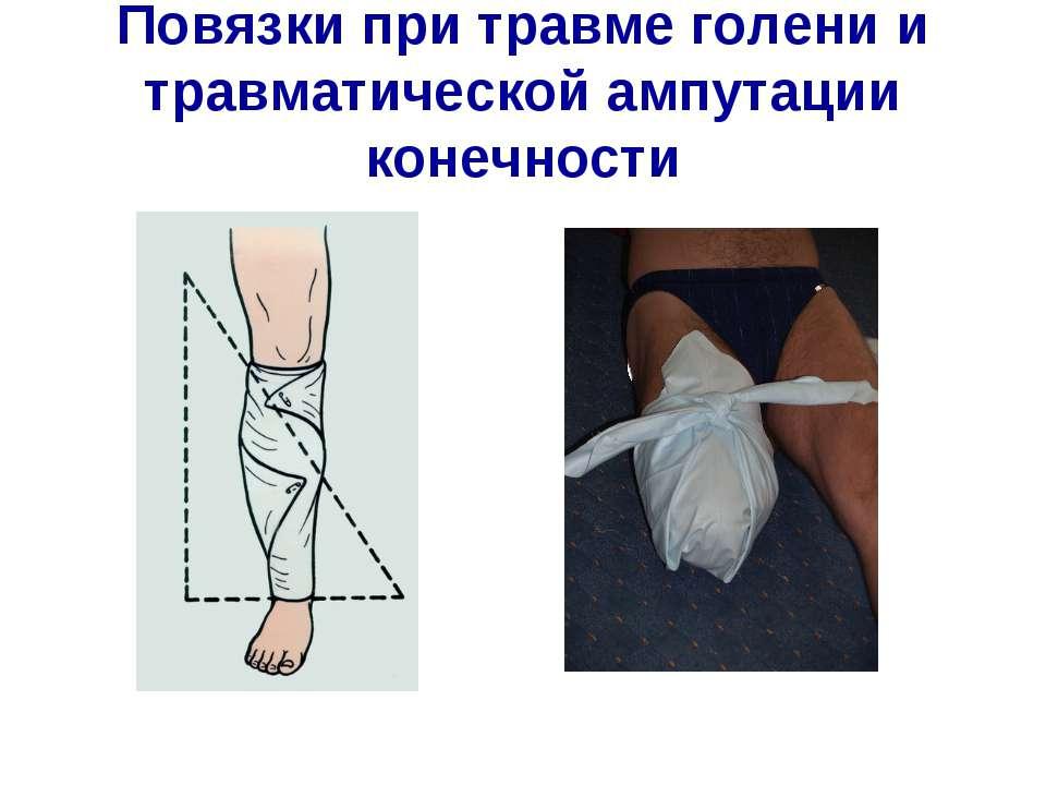 Повязки при травме голени и травматической ампутации конечности