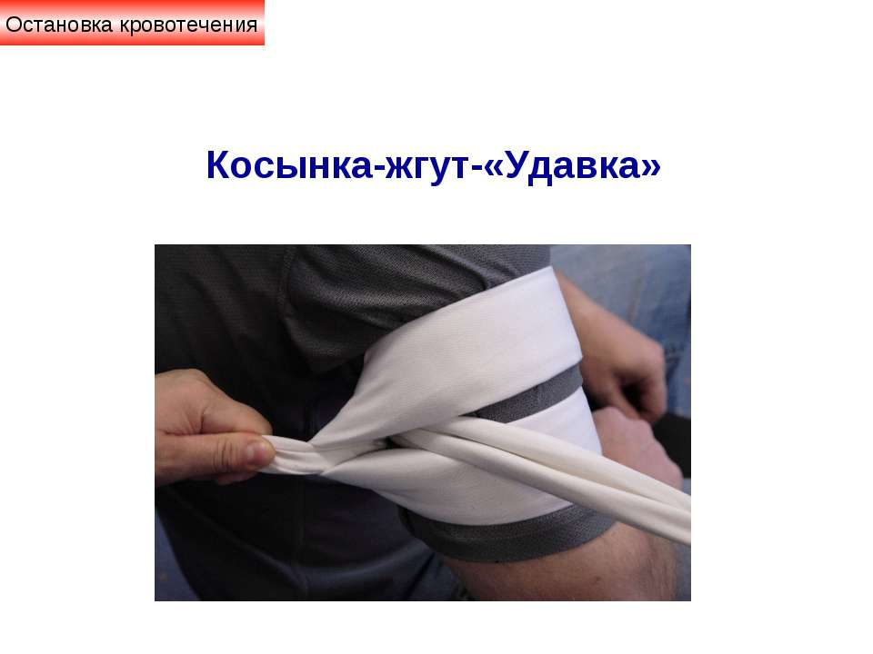 Остановка кровотечения Косынка-жгут-«Удавка»