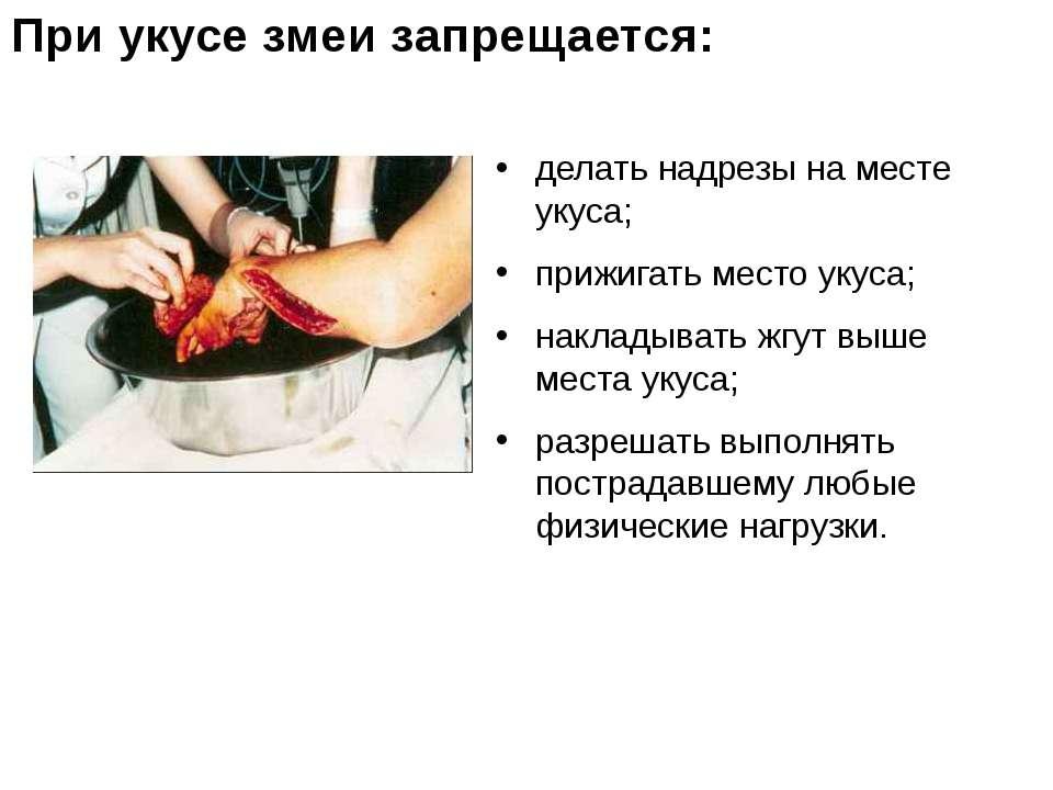 делать надрезы на месте укуса; прижигать место укуса; накладывать жгут выше м...